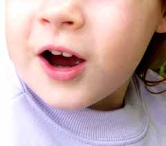 Echolalia is repetitive speech, a common feature of communication behavior in children with Autism, Asperger's syndrome and other developmental disorders. Early intervention would seek to address this if it became inappropriate, but many see it as a stepping stone in communication development.